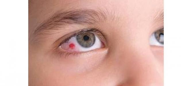 ما هي أسباب ظهور بقع دم داخل العين