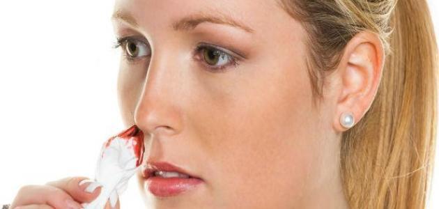 نزيف الأوعية الدموية من الأنف
