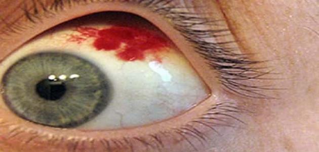 اسباب ظهور نقط دم داخل العين