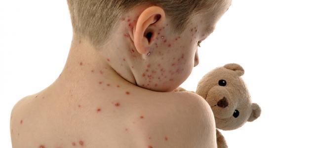 الوقاية من الحصبة بالتطعيم