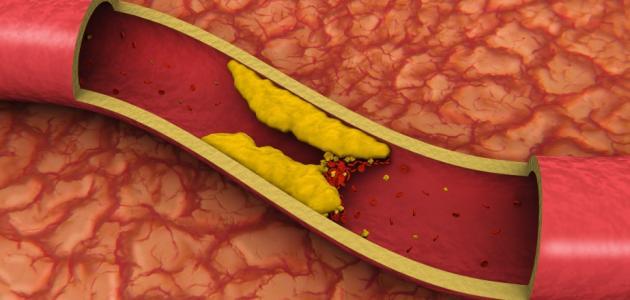 الصبار قد يخفض نسبة الكولسترول السئ بالجسم
