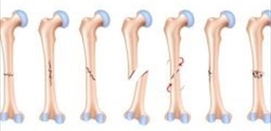 مراحل كسر العظام