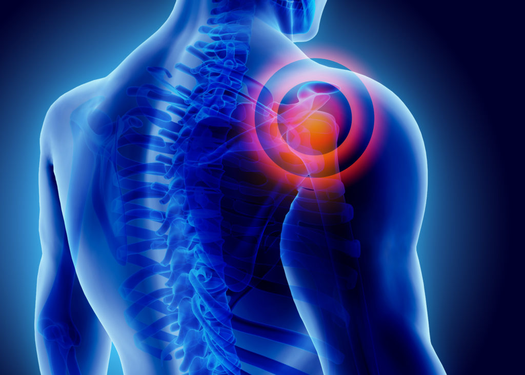 اعراض تمزق الكتف منها الألم الشديد والمتزايد اليوم السابع