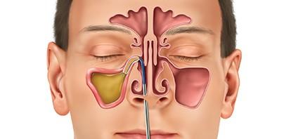 كيف يمكن وقف التهاب الجيوب الأنفية