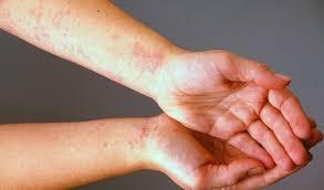 التهاب الجلد التحسسى