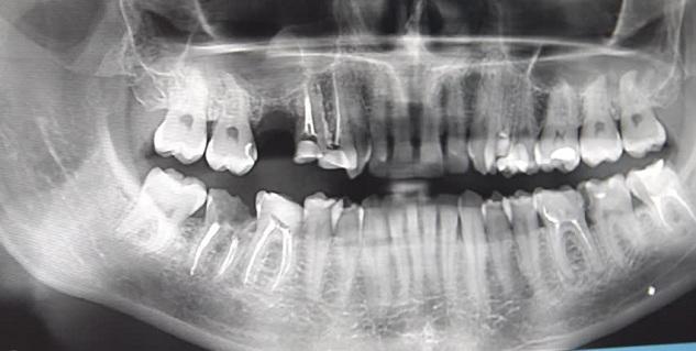 أشعة سينية على الأسنان