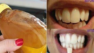 الاستخدام الثير لخل التفاح قد يسبب تأكل مينا الاسنان
