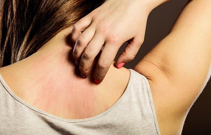 اضرار زيت الزيتون انه يسبب الطفح الجلدى