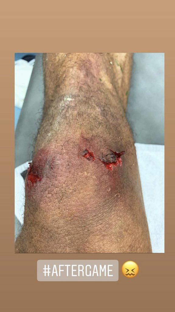 ركبة فاران مدافع ريال مرديد ممزقة