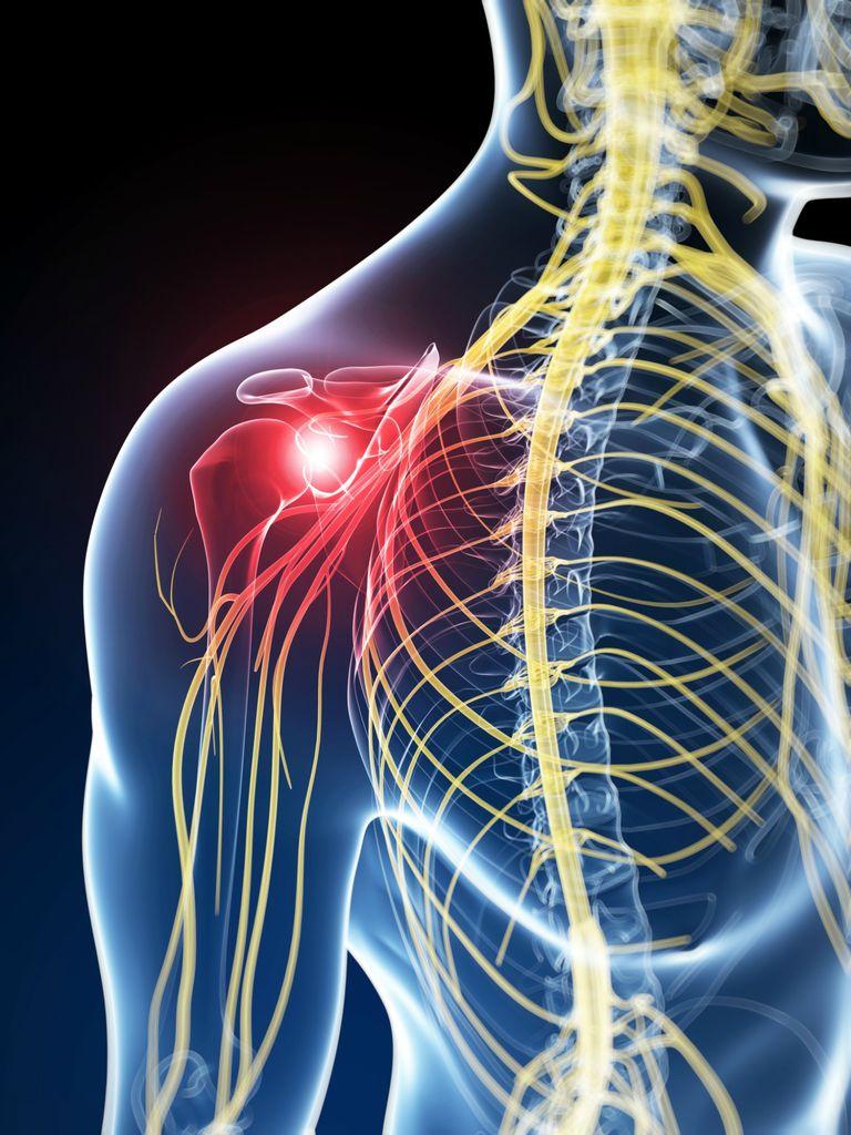 ما هى اسباب التهاب الاعصاب