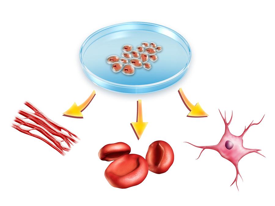 علاج السرطان بالخلايا الجذعية