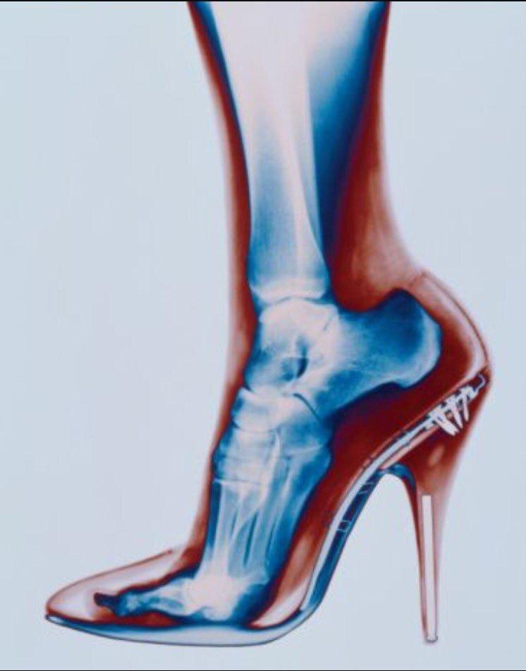 شكل القدم عند ارتداء الكعب فترة طويلة