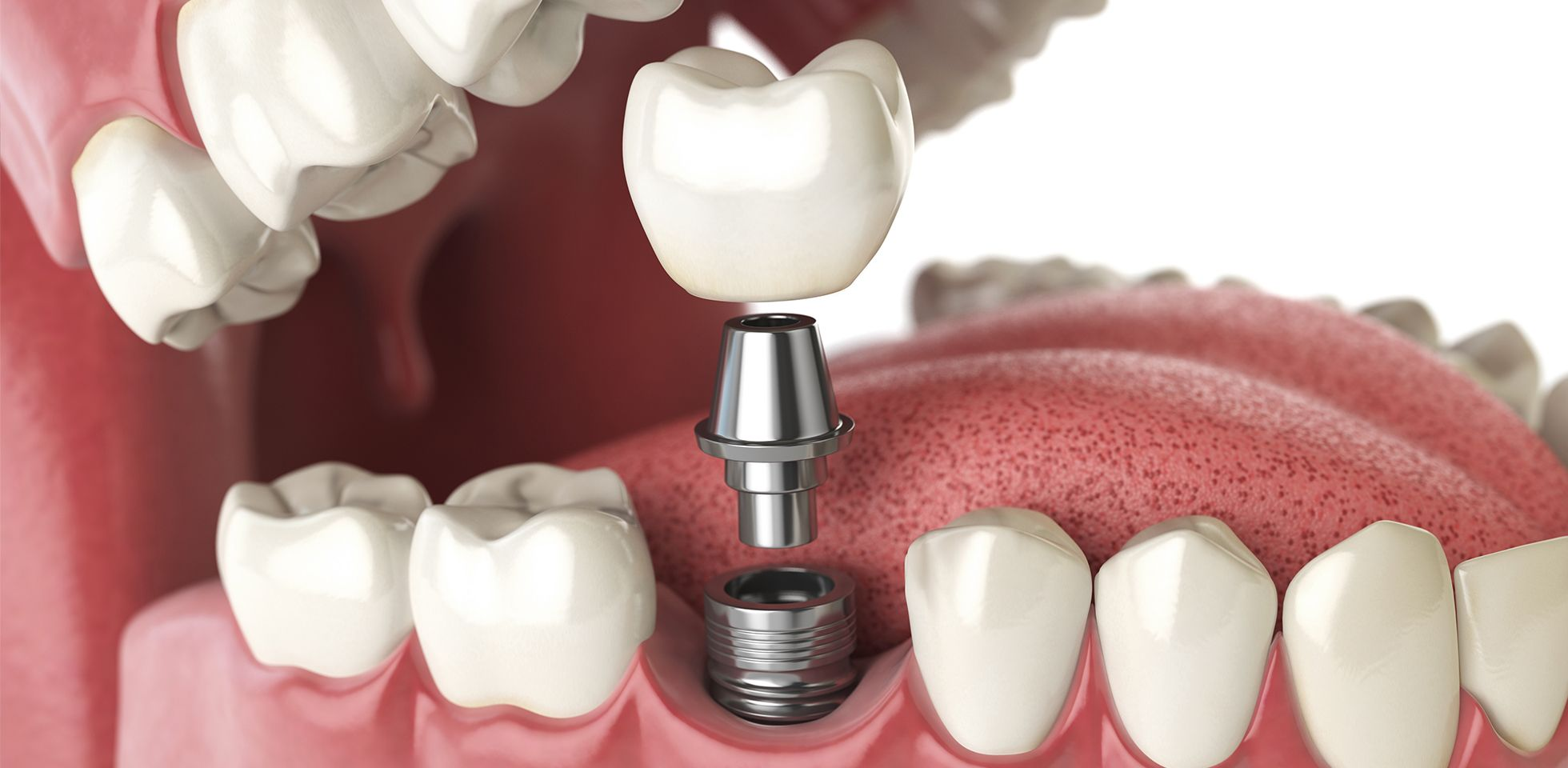 زراعة الاسنان م