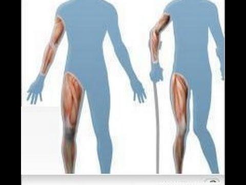 أنواع الضمور العضلي