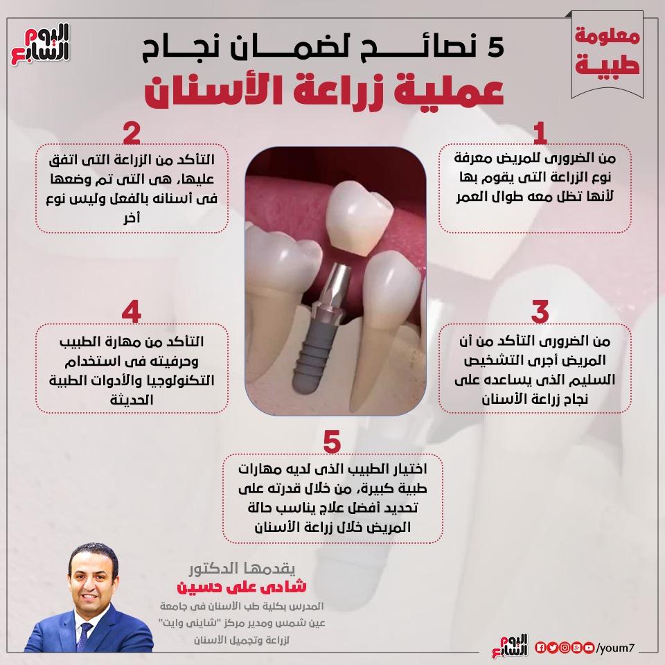 زراعة الاسنان 3