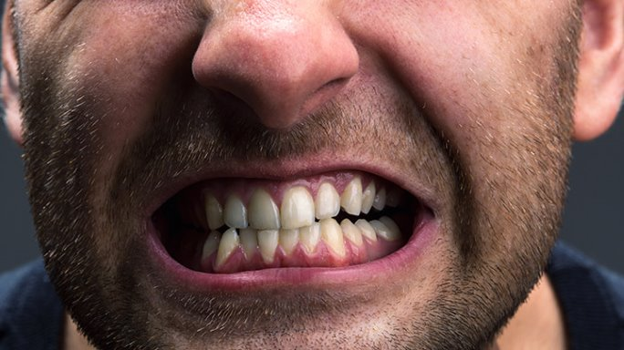 الجز على الاسنان