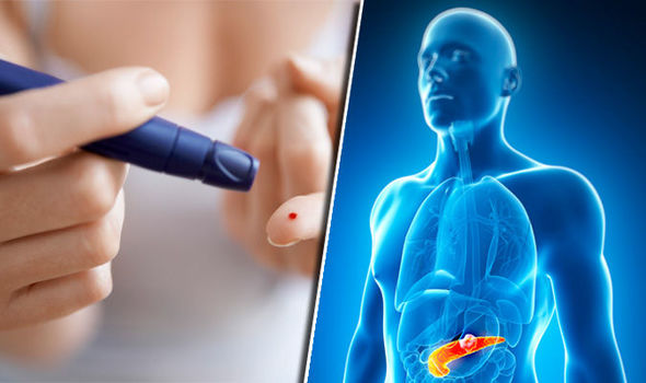 Diabetes-symptoms-870995