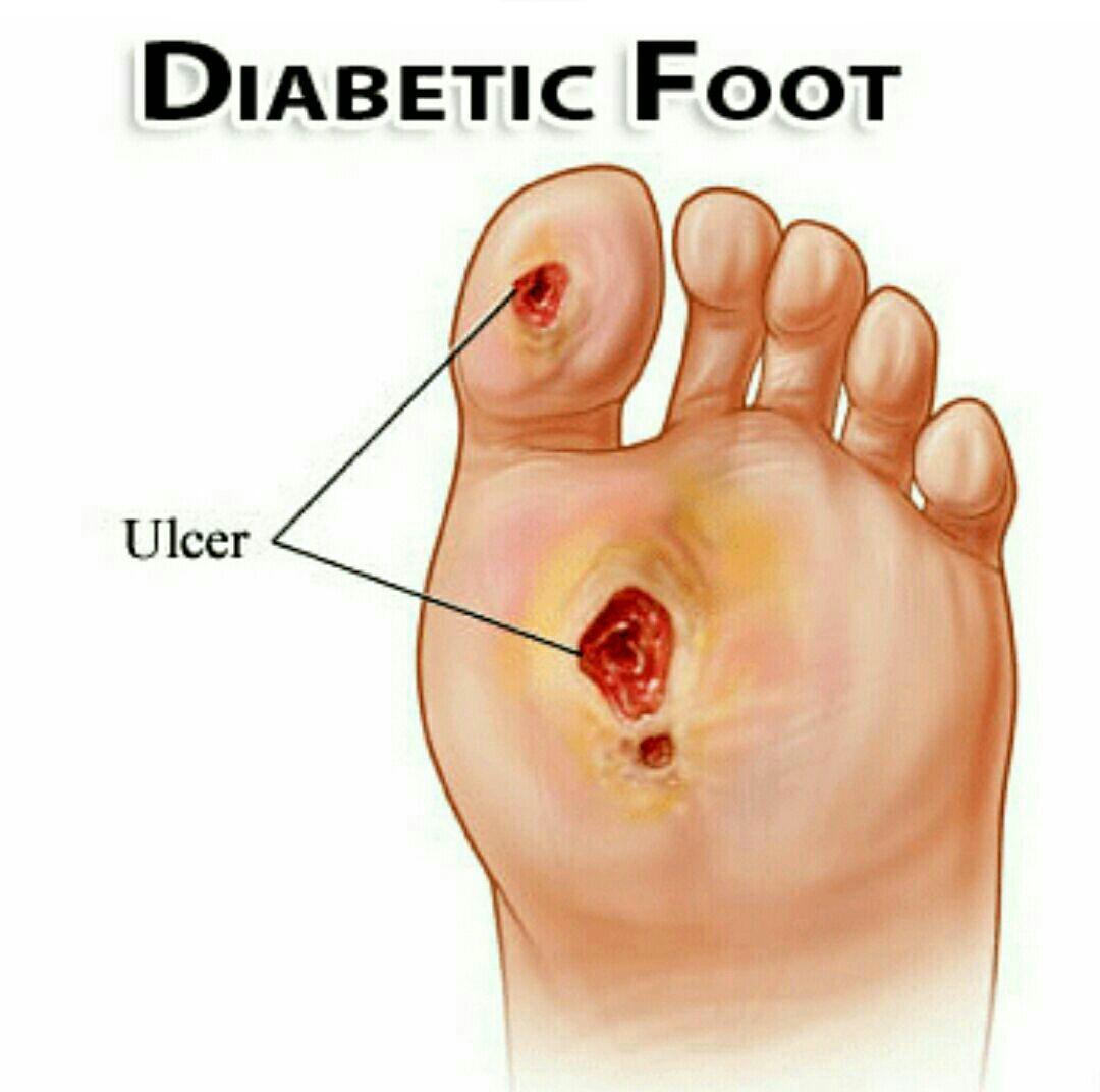 اعراض القدم السكرى