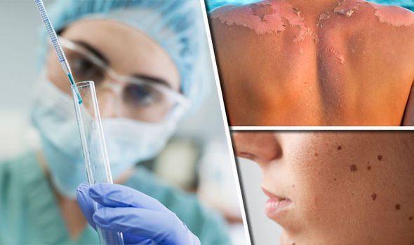 خرافات حول سرطان الجلد
