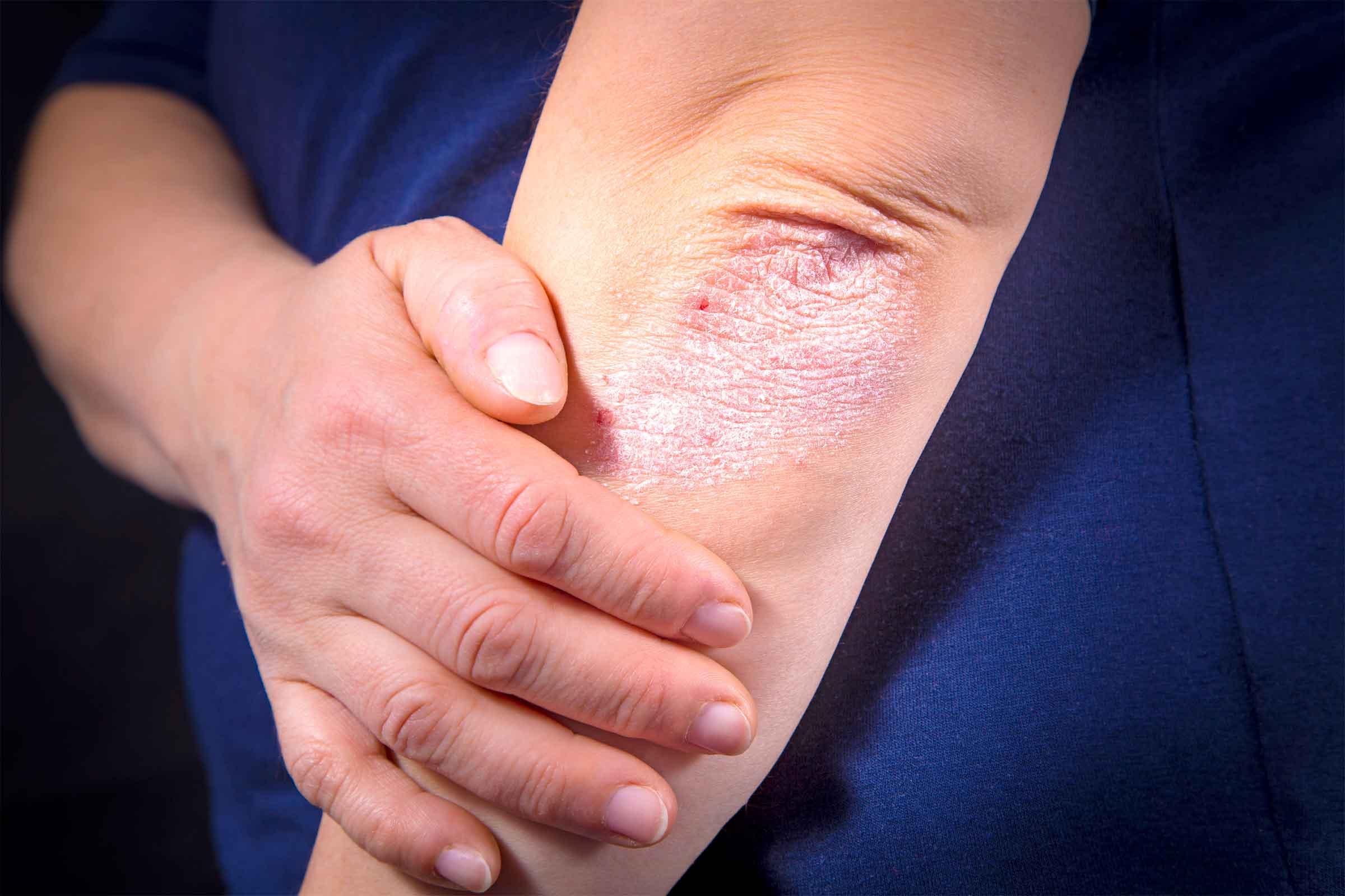 اعراض نقص الزنك التئام الجروح