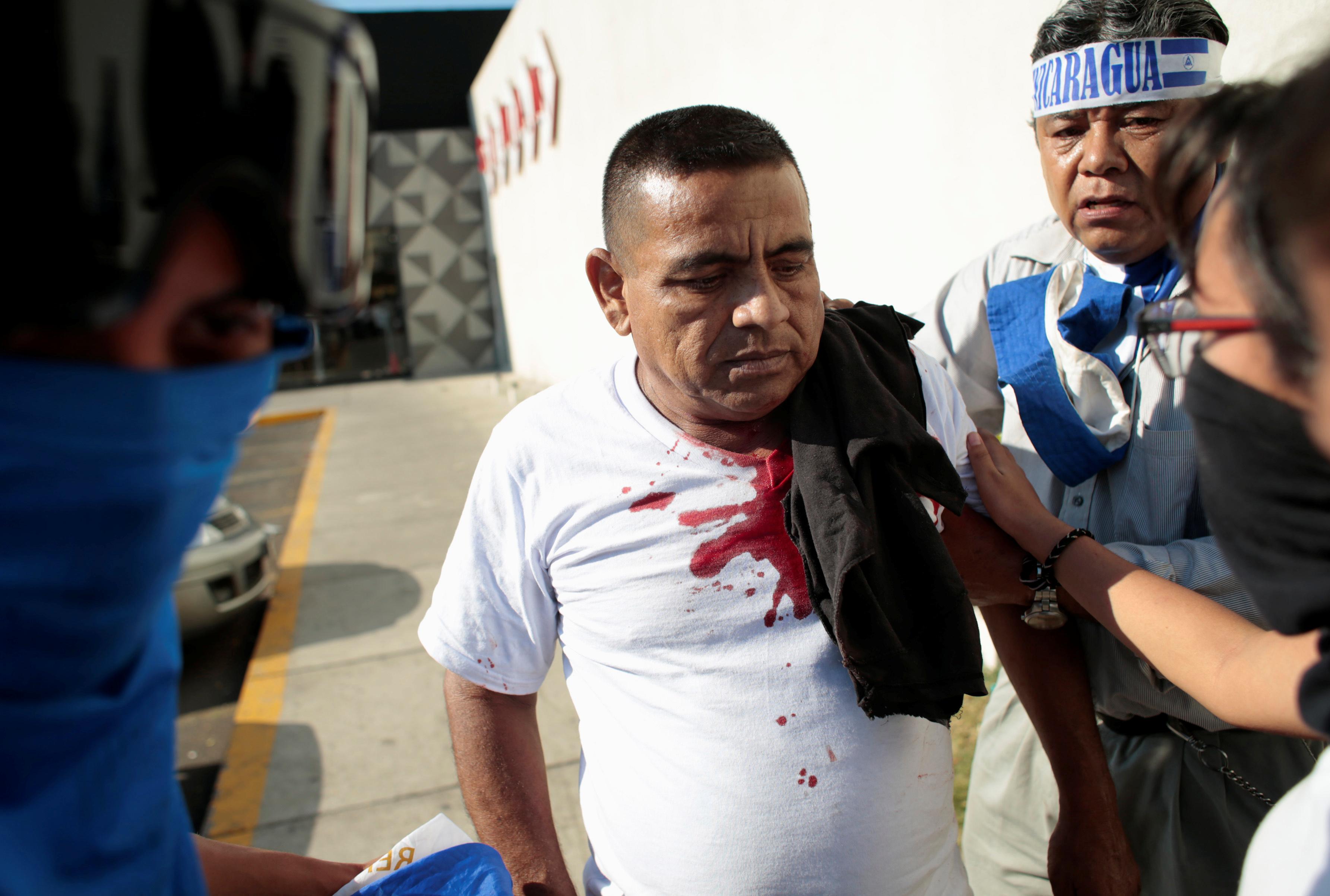 أثار الدماء على قميص أحد المتظاهرين جراء العنف