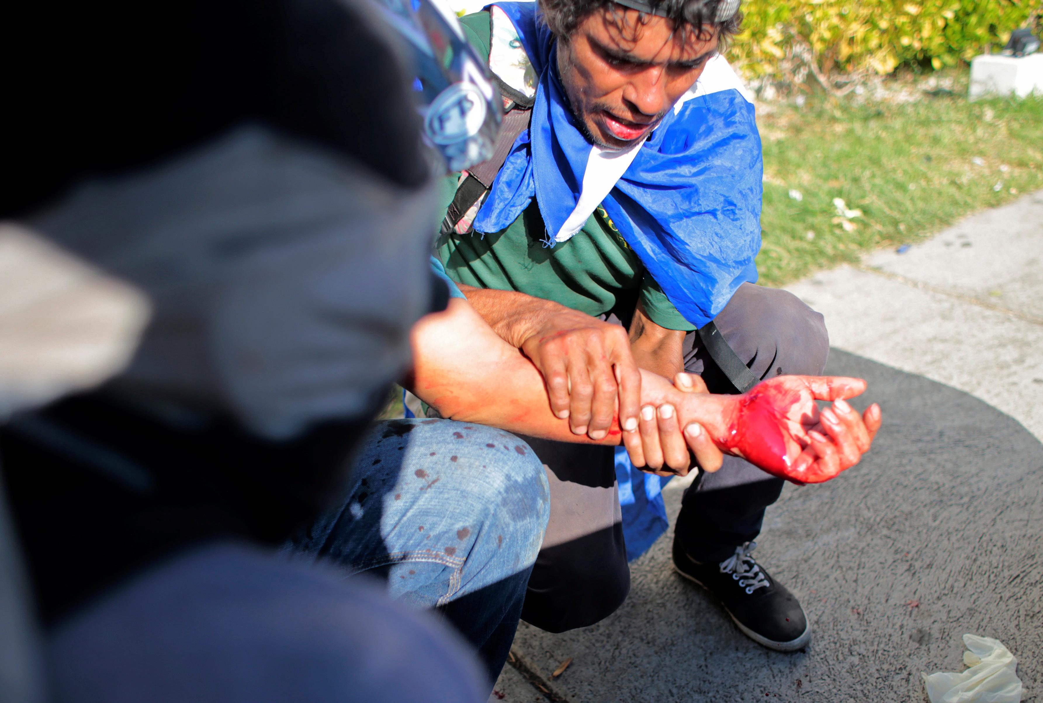 متظاهر أصيب خلال الاحتجاج