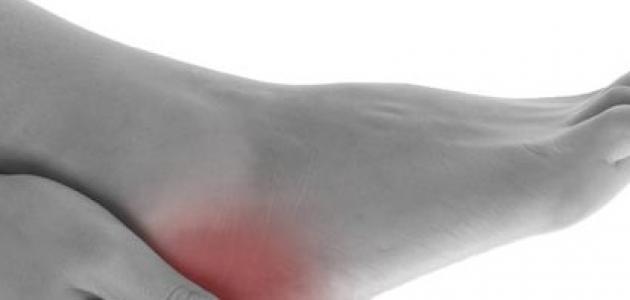 علاج الاملاح الزائدة فى الجسم