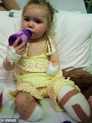 الفتاة بعد إجراء عملية البتر فى طفولتها