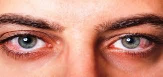 اضرار جفاف العين 1