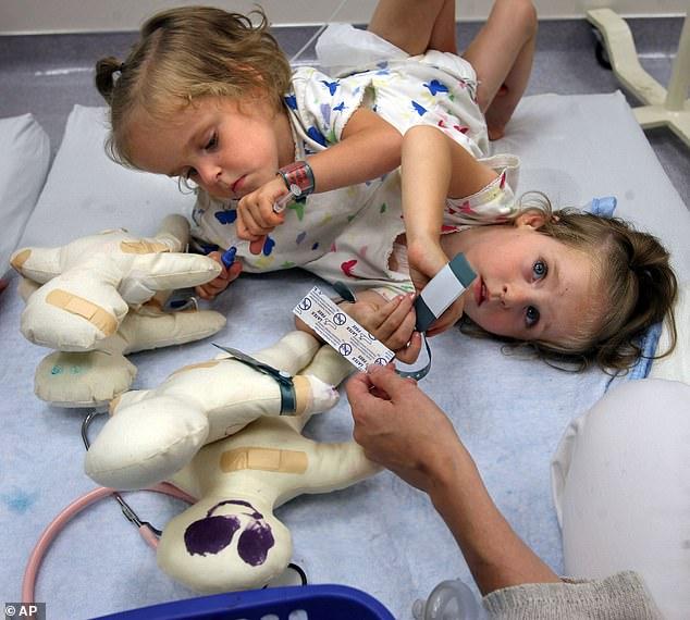 التوأم الملتصق قبل الخضوع لعملية الفصل الجراحى