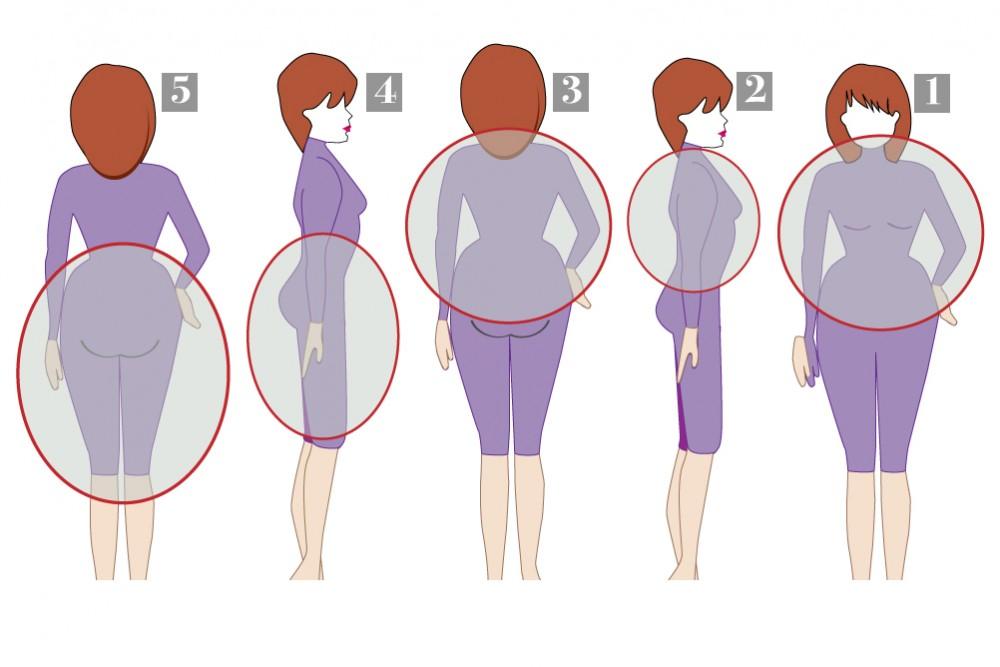 مناطق تراكم الدهون في الجسم