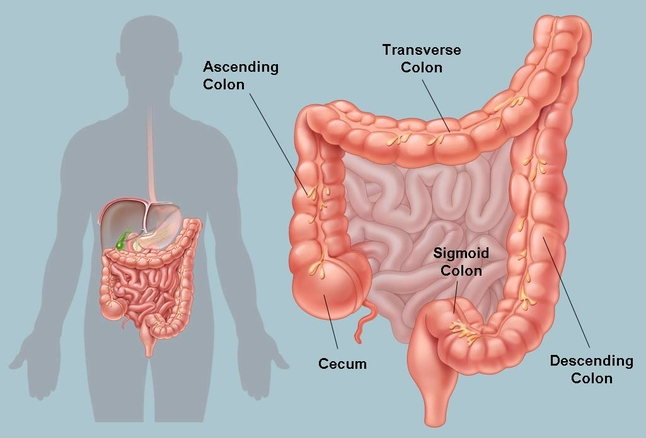 اسباب التهاب القولون