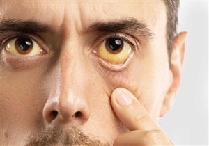 اسباب اصفرار العين خلل وظيفى فى بعض أجهزة الجسم اليوم السابع