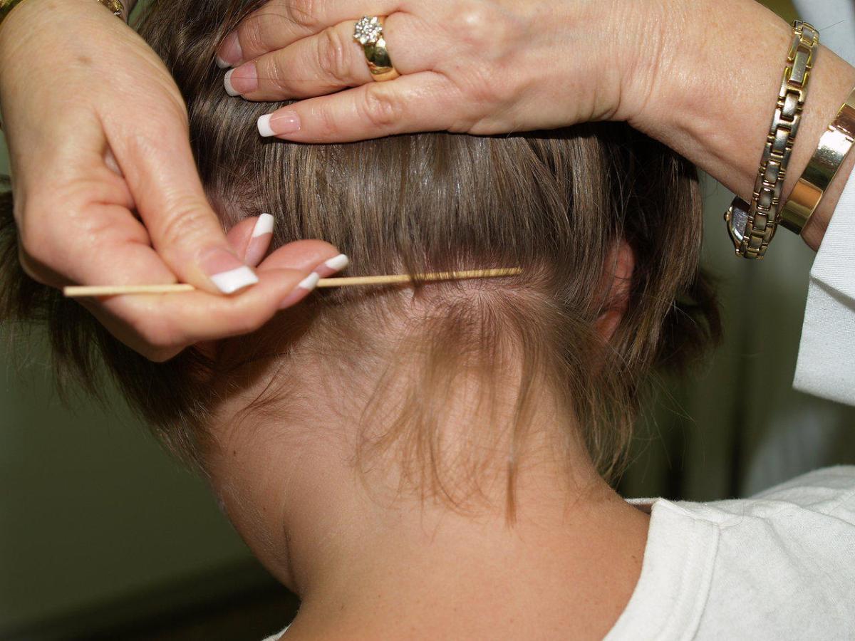 إزالة القمل من الشعر