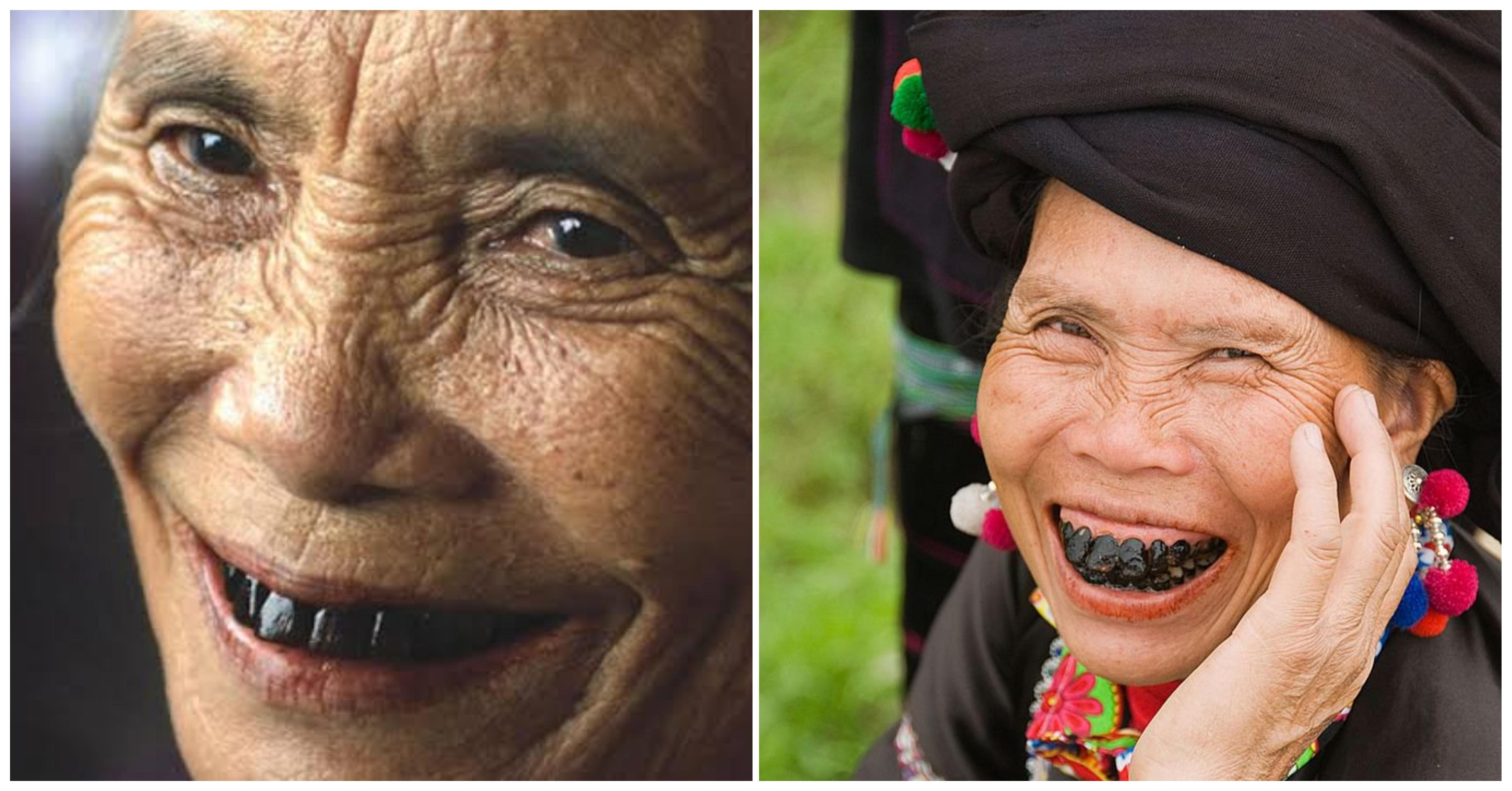 الأسنان السودة فى عصر ميجي