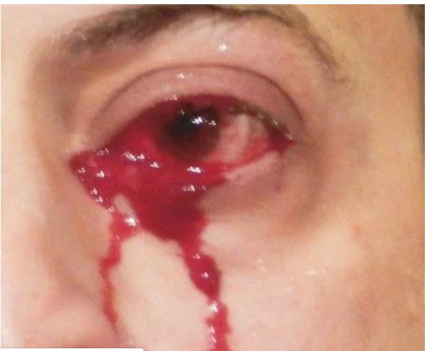 حالة نادرة لرجل يبكى بدلا من الدموع دم