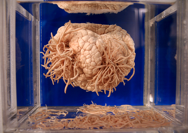 parasite-brain