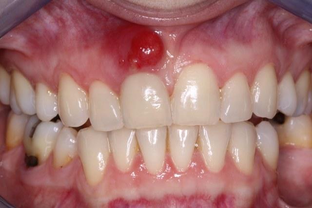 خراج الاسنان1