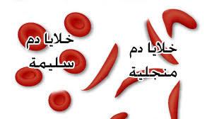 فقر الدم المنجلي 1