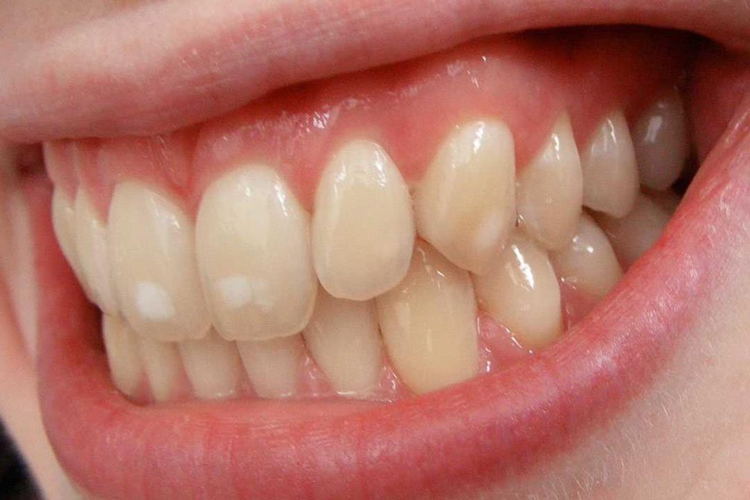 بقع بيضاء على الاسنان