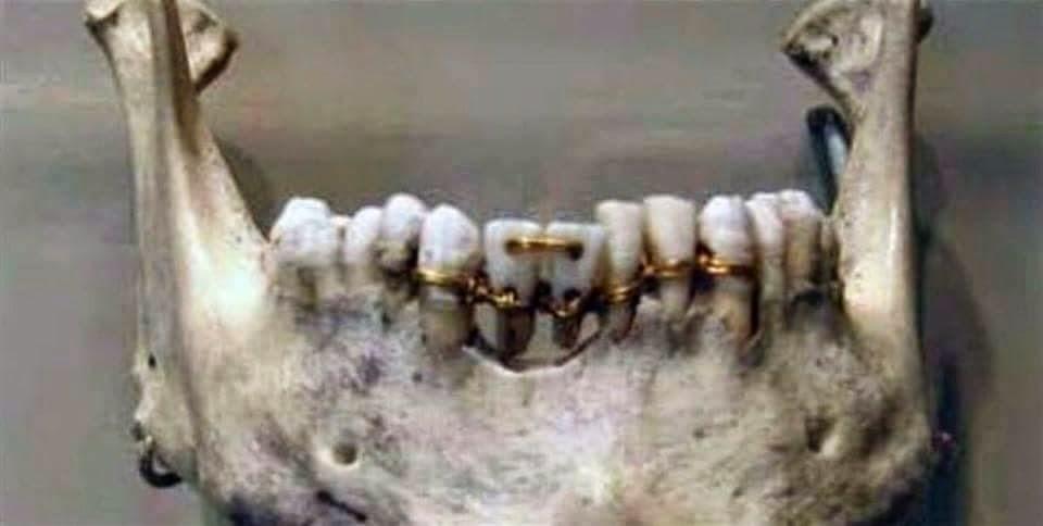 الاسنان عند قدماء المصريين