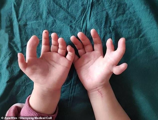 طفلة لديها 14 إصبع