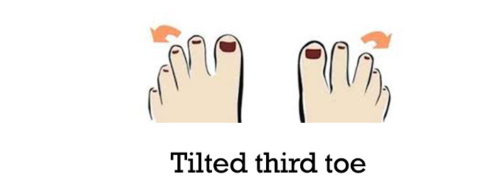 Tilted-third-toe-6