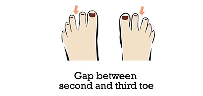 Gap-between-second-and-third-toe-9