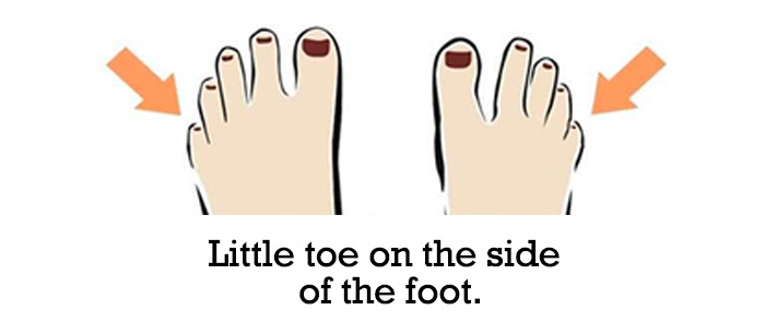 Little-toe-on-the-side-of-the-foot-5