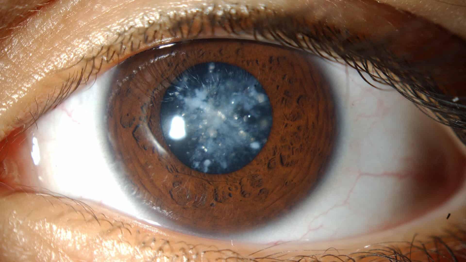 علاج-اعتام-عدسة-العين-او-المياه-البيضاء-طبيعيا