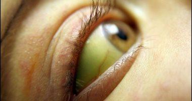 اسباب اصفرار العين