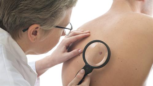 سرطان الجلد 1