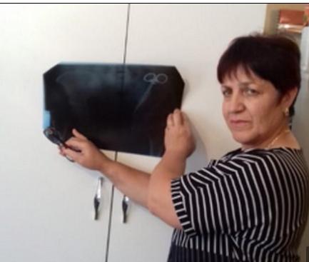 السيدة الروسية والأشعة