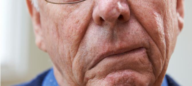 اعراض السكتة الدماغية فى الوجه